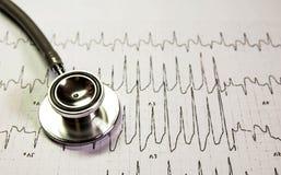 Стетоскоп на Cardiogram стоковое фото rf