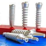стоматология микстуры зубоврачебных implants Стоковые Фото