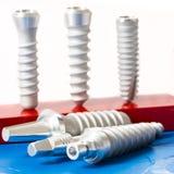 стоматология микстуры зубоврачебных implants Стоковые Изображения