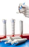 стоматология микстуры зубоврачебных implants Стоковая Фотография
