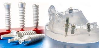 стоматология микстуры зубоврачебных implants стоковое изображение rf
