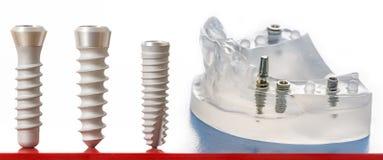 стоматология микстуры зубоврачебных implants Стоковые Фотографии RF