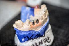стоматология микстуры зубоврачебных implants Стоковая Фотография RF