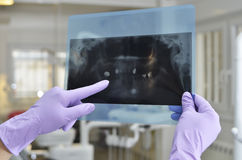 Стоматология Стоковая Фотография RF
