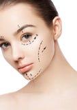 Сторона женщины пластической хирургии с линиями подтяжки лица Стоковые Изображения