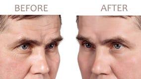 Сторона зрелого человека перед и после косметическими rejuvenating процедурами стоковая фотография rf