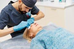 Сторона маркировки пожилой женщины старая пластической хирургии на receptio Стоковая Фотография
