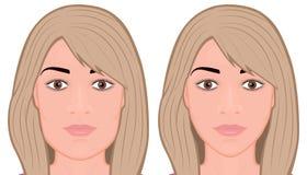 Сторона хирургии уменьшения front_Jaw стороны иллюстрация штока