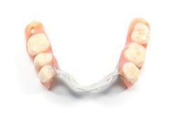 Сторона частично denture верхняя - зубоврачебное протезирование стоковое изображение rf
