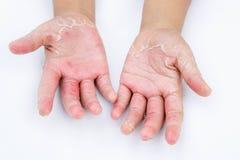 Сухие руки, корка, дерматит контакта, грибковые инфекции, кожа inf стоковые фото