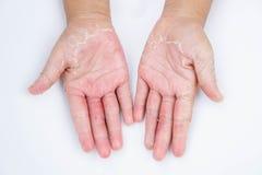Сухие руки, корка, дерматит контакта, грибковые инфекции, кожа inf стоковая фотография rf