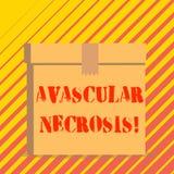Схематическое сочинительство руки показывая Avascular некроз Смерть текста фото дела ткани косточки должная к недостатку крови иллюстрация штока