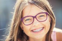 Счастливая усмехаясь девушка с зубоврачебными расчалками и стеклами Расчалки и стекла зубов молодой милой кавказской белокурой де