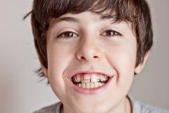 Счастливое предназначенное для подростков с расчалками Стоковые Изображения