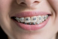 Съемка конца-вверх зубов с расчалками Женский пациент с кронштейнами металла на зубоврачебном офисе ортодонтическая обработка стоковые фото