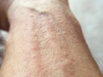 Сыпь на коже на руке человека стоковые фото