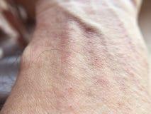 Сыпь на коже на руке человека стоковая фотография
