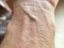 Сыпь на коже на руке человека стоковые фотографии rf