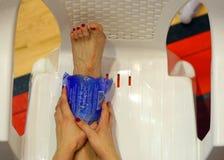 Сломанная нога Стоковые Изображения RF
