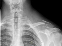 Сломленная ключица Стоковые Фотографии RF