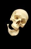 Сломленная челюсть стоковое фото rf