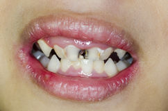 сломленные зубы Стоковая Фотография