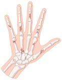 Сломленные косточки в человеческой руке иллюстрация штока