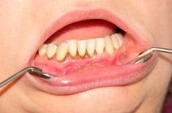 Тартар и зубоврачебная металлическая пластинка Стоковое фото RF