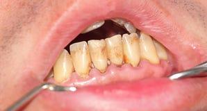 Тартар и металлическая пластинка на прифронтовых зубах Стоковые Изображения RF