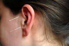 терапия алтернативы acupunture стоковое фото