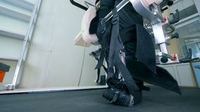 Терпеливые ноги в специальном протезе, конец ` s вверх видеоматериал