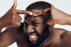 Терпящ чернокожий человека сжимает цыпк на стороне жолудя стоковое фото rf