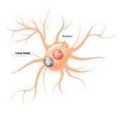 Тело Lewy Заболевание Parkinsons и заболевание Alzheimers бесплатная иллюстрация