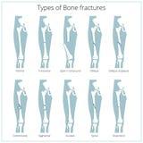 Типы вектора переломов кости медицинского воспитательного Стоковое Фото