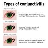 Типы конюнктивита Стоковая Фотография RF