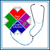 Типы сердечной аритмичности: тахикардия синуса, аритмичность синуса Стоковое Изображение RF