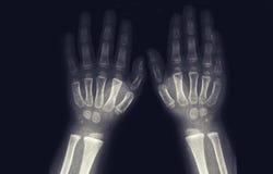 Томография рук малыша отсутствие патологий стоковые изображения rf