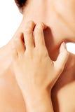 Топлесс женщина царапая ее шею Стоковое Изображение
