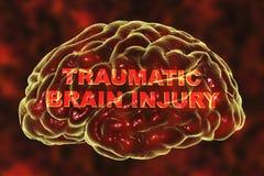 Травматичная черепно-мозговая травма иллюстрация штока