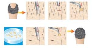 Трансплантат волос Стоковое Изображение RF