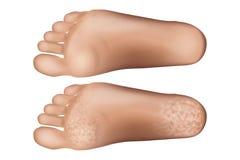 Треснутая пятка Ноги с сухой кожей бесплатная иллюстрация