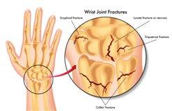 Трещиноватости соединения запястья руки Стоковые Фото
