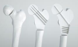 Трещиноватость бедренной кости - обработка с винтами - перевод 3D Иллюстрация штока