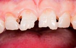 Трещиноватость зуба Стоковое Изображение RF