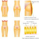 Тучные бедренные кости Стоковое Изображение