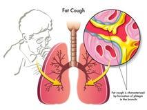 Тучный кашлей Стоковая Фотография RF
