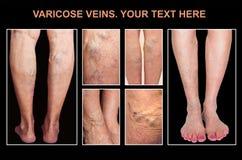 Тягостные varicose вены, вены паука, varices на строго трогнутой ноге Вызревание, заболевание старости, астетическая проблема стоковая фотография