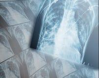 Тяжелые разрушительные изменения в легких рентгеновского снимка пациентов Стоковые Фотографии RF