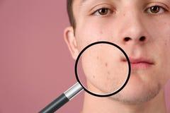 Увеличивая кожа ` s молодого человека с проблемой угорь стоковое фото rf