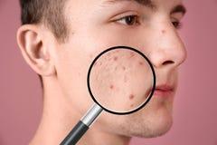 Увеличивая кожа ` s молодого человека с проблемой угорь стоковые фото